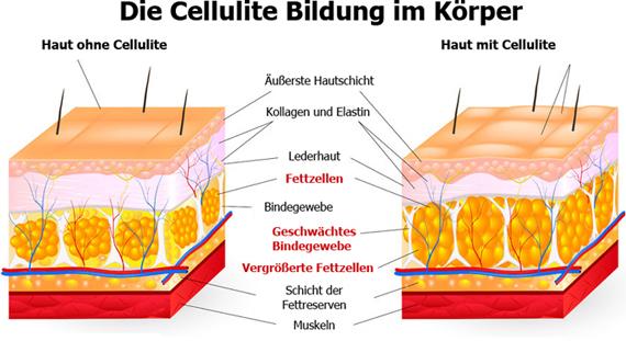 Cellulite-Bildung