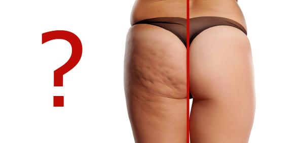 Cellulite-Ursachen